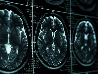 ProMIS Neurosciences Candidate for Alzheimer's Shows Potential for Improved Therapeutic Potency