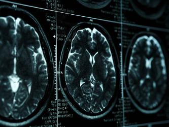 Boehringer Ingelheim Refocuses PDE9 Inhibition Brain Research on Schizophrenia