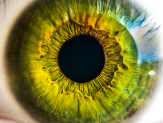 Alkahest Starts AKST4290 Trial for Wet Age-Related Macular Degeneration