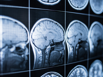 Oxeia Initiates Trial for OXE103 for Concussions
